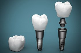 Diagram of the parts of a dental implant in Torrington