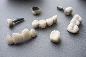 Different types of dental implants in Torrington on gray background