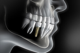 X-ray diagram of dental implants in Torrington